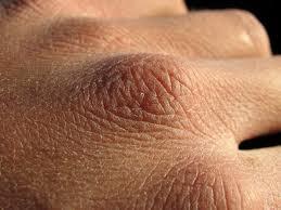 peau seche
