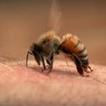 piqure abeille et moustique